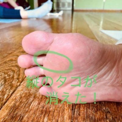 足の裏のタコが消えた!